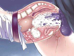 hentai x ray